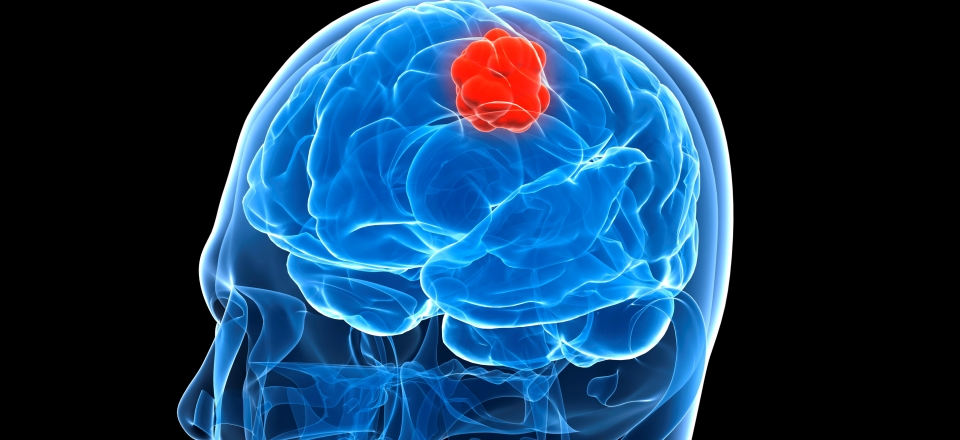 brain tumor dating site Types, symptoms, and treatment of a brain tumor a brain tumor is a growth that develops in the brain or spinal cord they may be malignant, developing aggressively, or benign symptoms include headaches, nausea, and coordination problems.